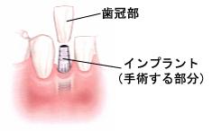 歯冠部とインプラント